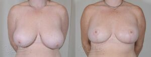 Patient 9 Breast Reduction Before and After Front View