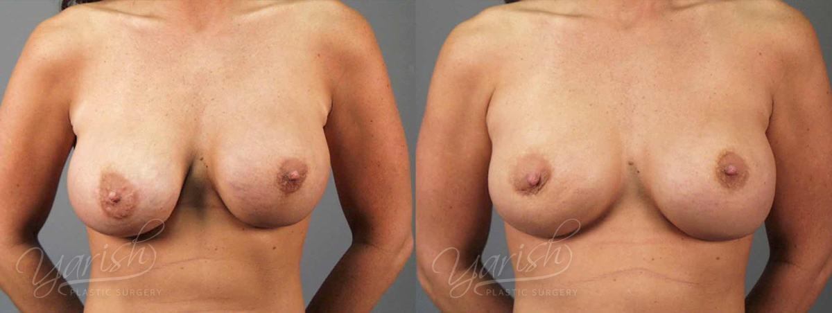 Patient 4 Breast Revision Before and After Front View