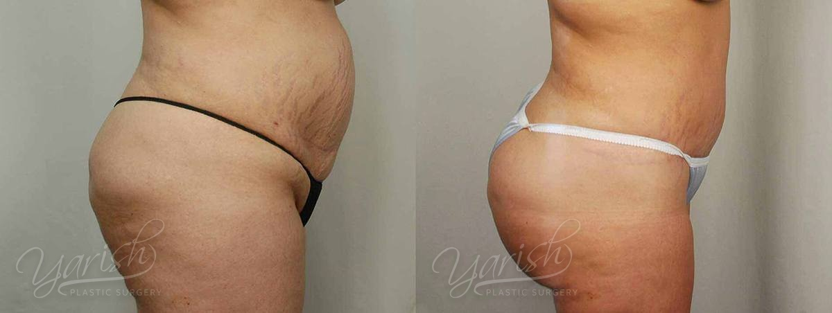 Patient 4 Brazilian ButtLift Before and After - Side View