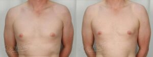 Patient 4 Gynecomastia Before and After Front View