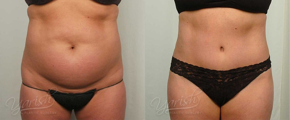 Patient 4 Tummy Tuck Before and After Front View