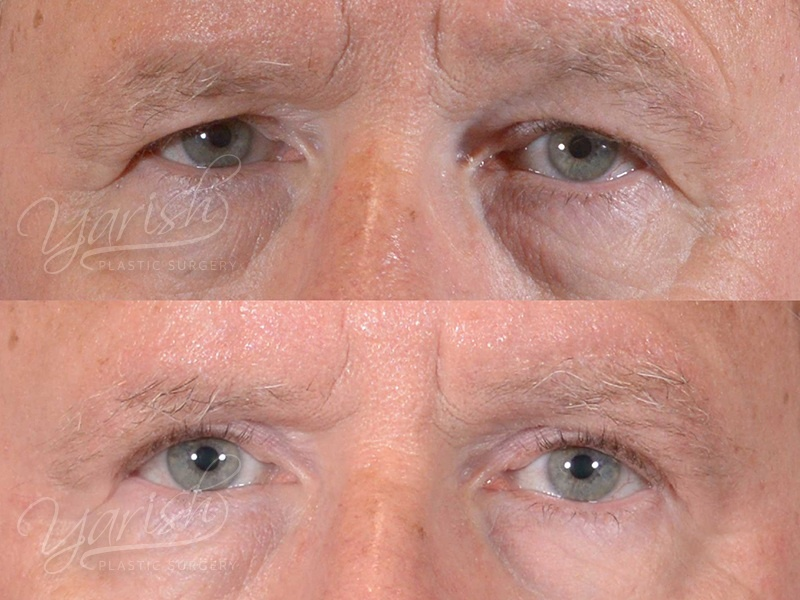 Patient 8 Blepharoplasty Before and After Front View