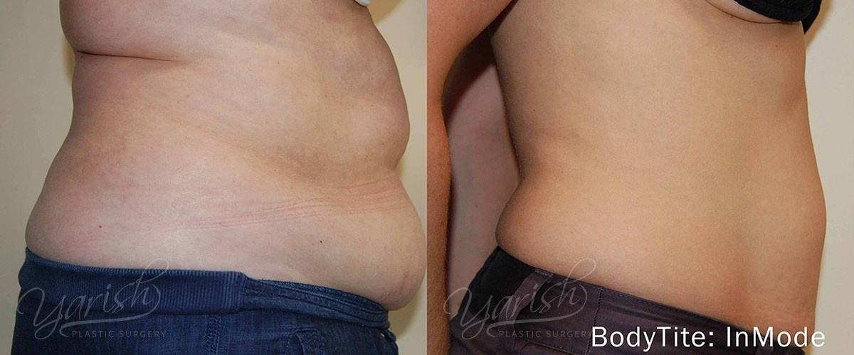 Patient 7 BodyTite Before and After Photo - Belly