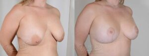 Patient 6 Breast Augmentation with Mastopexy Before and After Right Oblique View