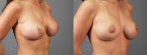 Patient 4 Breast Revision Before and After Right Oblique View