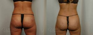Patient 5 Brazilian ButtLift Before and After - Back View