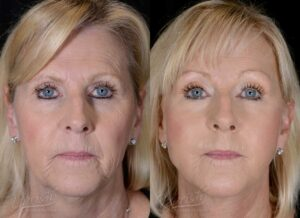 Patient 4 Face Lift and Neck Lift Before and After Front View