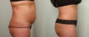 Patient 4 Tummy Tuck Before and After Right Side View