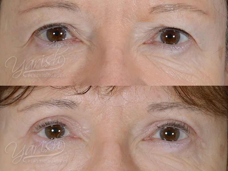 Patient 9 Blepharoplasty Before and After Front View