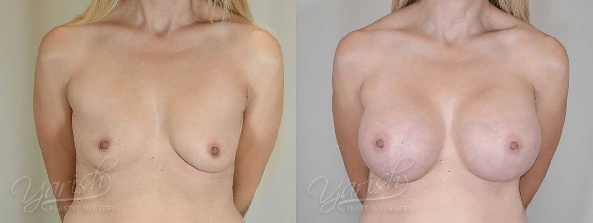 Patient 2 Breast Augmentation with Mastopexy Before and After Front View