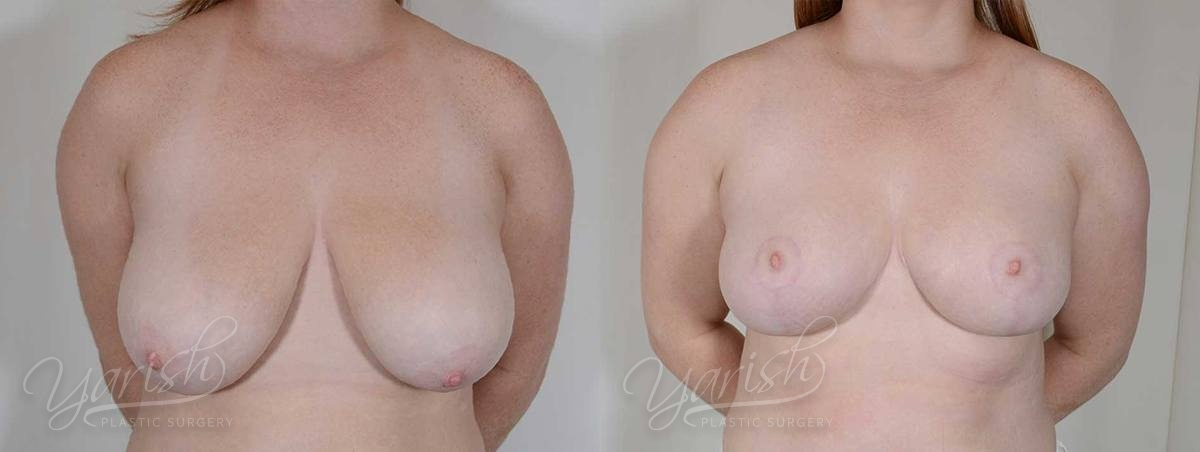 Patient 10 Breast Reduction Before and After Front View