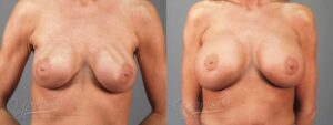 Patient 5 Breast Revision Before and After Front View