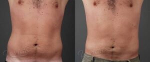 Patient 4 Male Liposuction Before and After Front View