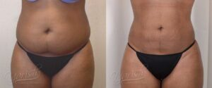 Patient 6 Liposuction Before and After Front View