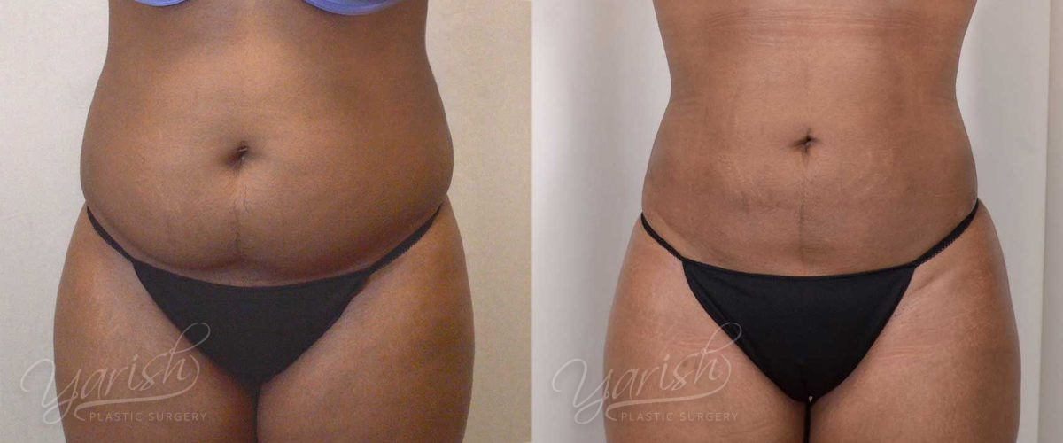 Liposuction For Women Before After Photos Dr Yarish