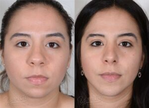 Patient 2 Rhinoplasty Before and After Front View