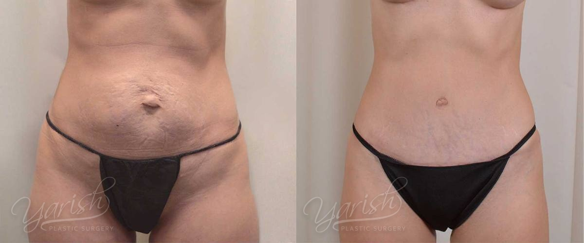 Patient 5 Tummy Tuck Before and After Front View