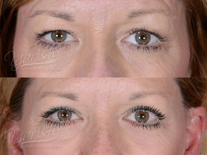 Patient 10 Blepharoplasty Before and After Front View