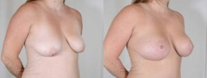 Patient 7 Breast Augmentation with Mastopexy Before and After Right Oblique View