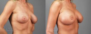 Patient 5 Breast Revision Before and After Right Oblique View