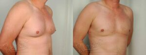 Patient 5 Gynecomastia Before and After Right Oblique View