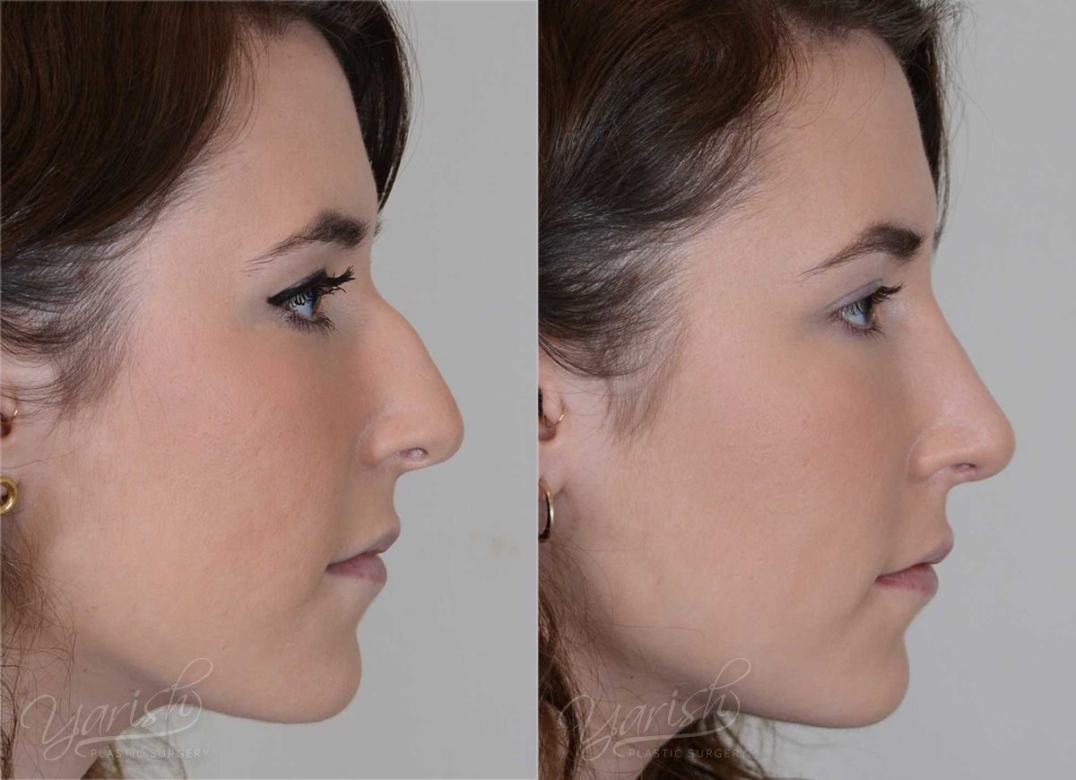 Patient 11 Rhinoplasty Before and After Right Side View