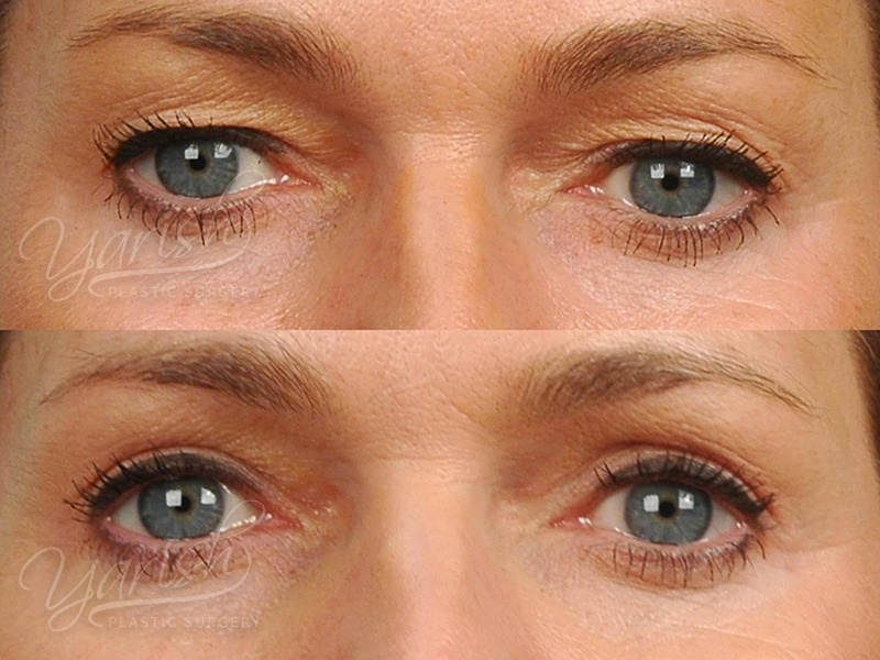 Patient 11 Blepharoplasty Before and After Front View