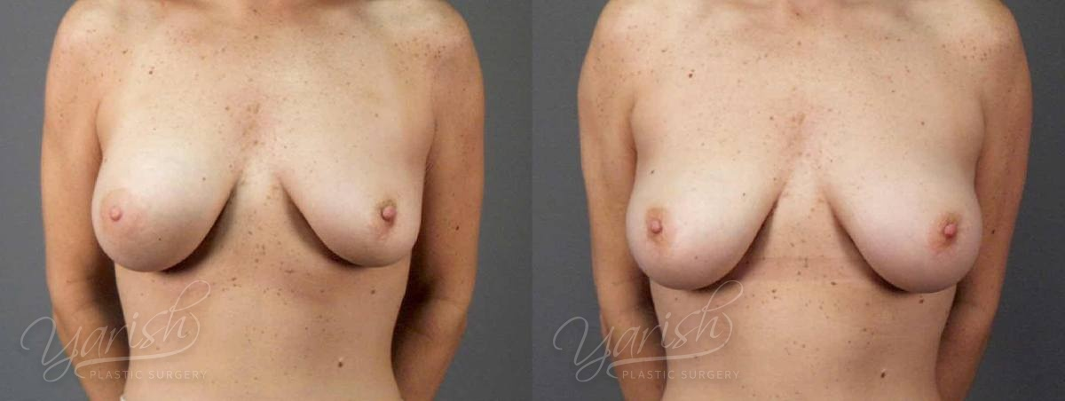 Patient 6 Breast Revision Before and After Front View