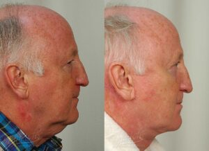 Patient 6 Face Lift and Neck Lift Before and After Right Side View