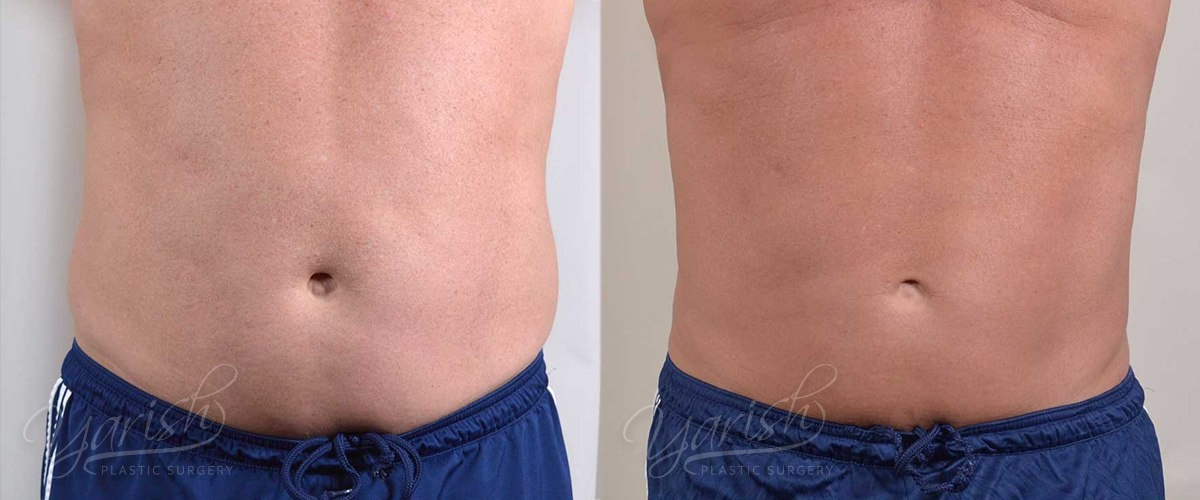 Patient 5 Male Liposuction Before and After Front View