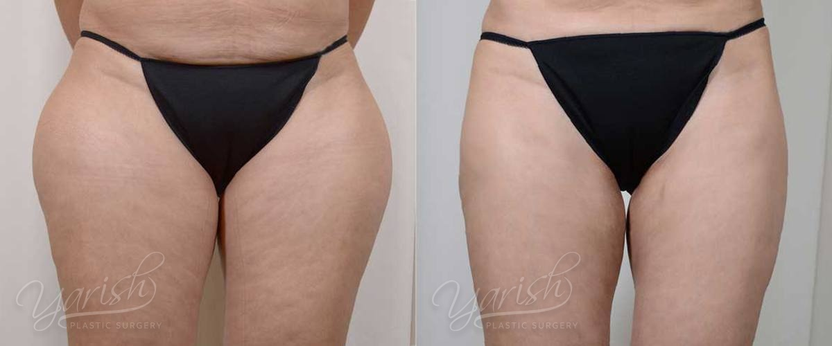 Patient 7 Liposuction Before and After Front View