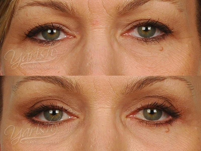 Patient 12 Blepharoplasty Before and After Front View