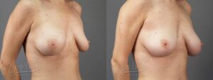 Patient 6 Breast Revision Before and After Right Oblique View