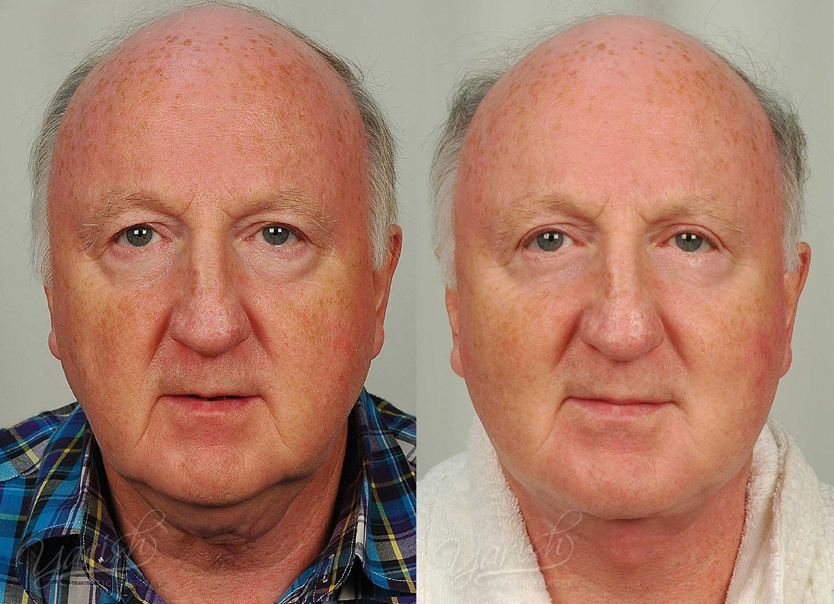 Patient 6 Face Lift and Neck Lift Before and After Front View