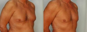 Patient 6 Gynecomastia Before and After Right Oblique View