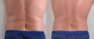 Patient 5 Male Liposuction Before and After Back View