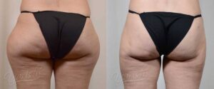Patient 7 Liposuction Before and After Back View