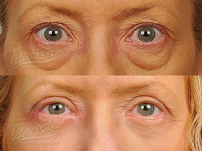 Patient 13 Blepharoplasty Before and After Front View