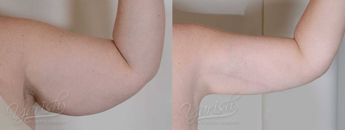 Patient 7 Brachioplasty Before and After Photo