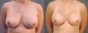 Patient 7 Breast Revision Before and After Front View