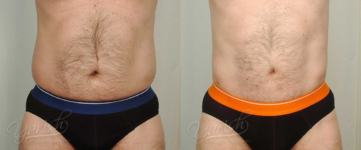 Patient 6 Male Liposuction Before and After Front View