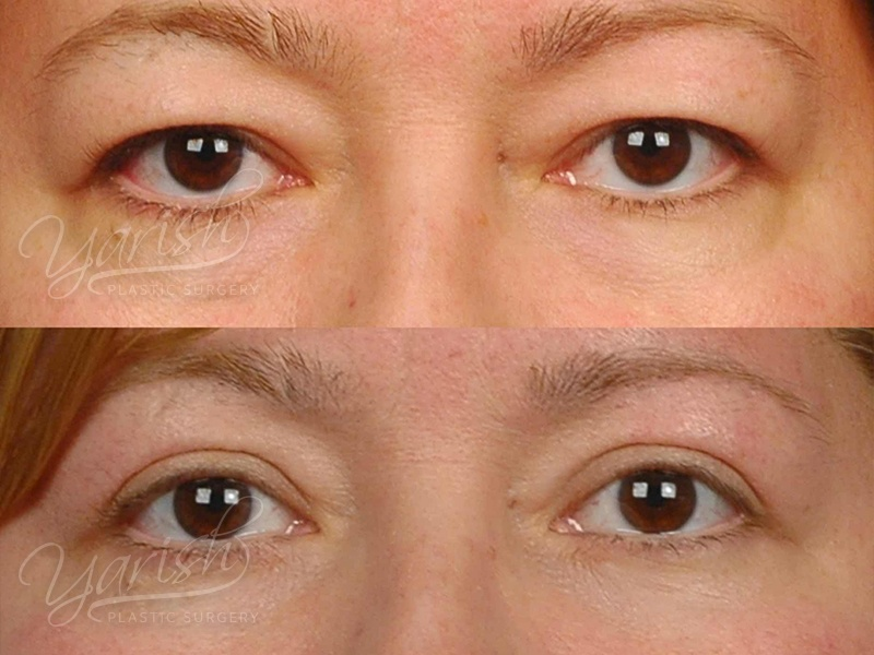 Patient 14 Blepharoplasty Before and After Front View