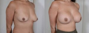 Patient 7 Breast Augmentation Before and After Right Oblique View