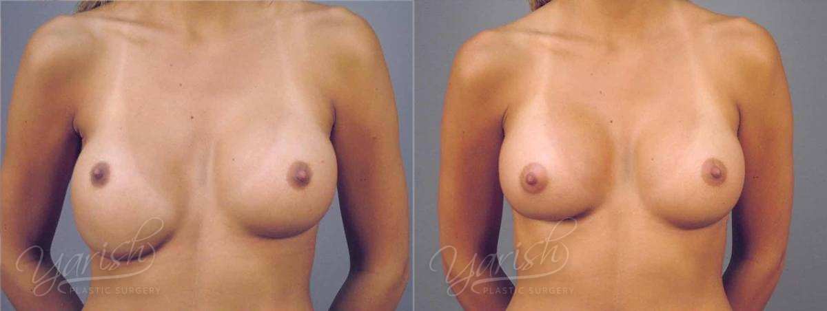 Patient 8 Breast Revision Before and After Front View