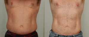 Patient 7 Male Liposuction Before and After Front View
