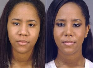 Patient 15 Rhinoplasty Before and After Front View