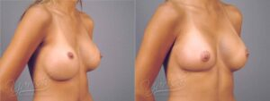 Patient 8 Breast Revision Before and After Right Oblique View