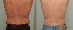 Patient 7 Male Liposuction Before and After Back View