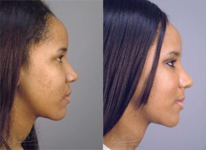 Patient 15 Rhinoplasty Before and After Right Side View