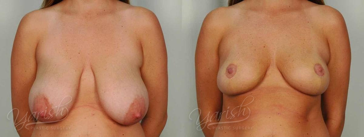 Patient 8 Breast Lift Before and After Front View